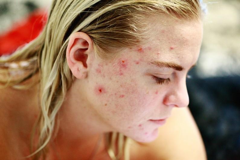 3 důvody, proč se vám v létě zhoršuje akné